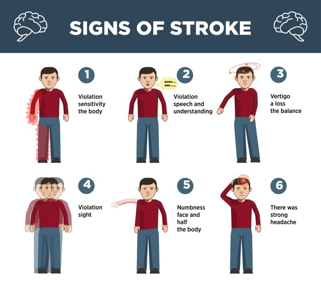 Heart stroke symptoms infographics template and vector icons of visual and physical signs of cerebrovascular insult or brain attack